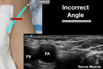 Figure 5: Error 2: The angle of the probe is not perpendicular to the femoral artery, making the fascia iliaca and iliacus muscle difficult to identify.