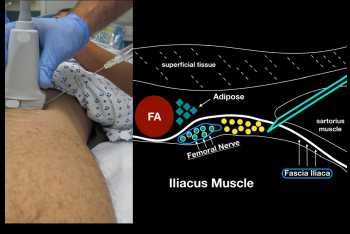 Figure 6: When performing an in-plane lateral to medial approach to the ultrasound-guided femoral nerve block, obtain clear sonoanatomy by proper probe positioning. Try to get your block needle just under the fascia iliaca (lateral to the femoral nerve) and inject anesthetic gently.