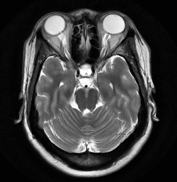 Axial T2-weighted MRI of a patient with idiopathic intracranial hypertension shows prominent cerebrospinal fluid surrounding the optic sheaths within both orbits.