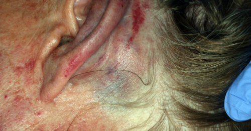 Bruising on the side of the patient's head