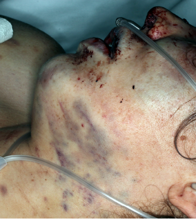 Figure 2(LEFT): Bruising around the patient's throat and jaw.   Brandi Castro and Tami Hartlaub