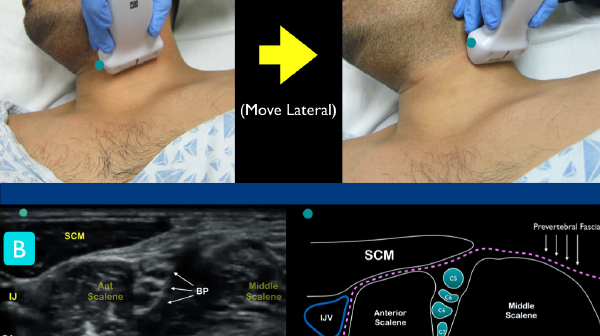 Figure 1 Figure 1A: Classic technique for locating the interscalene brachial plexus. At the level of the larynx, slide lateral until the ultrasound landmarks are noted Figure 1B: Just under the sternocleidomastoid muscle (SCM), locate the anterior and middle scalene muscles. The interscalene groove will contain the nerve roots of the brachial plexus. Note the internal jugular vein (IJV) and carotid artery (CA) on the medial aspect of the anterior scalene muscle.