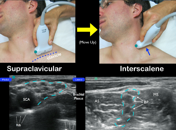 Figure 2 An alternative technique to locate the interscalane brachial plexus. Start with the transducer in the supraclavicular fossa. Locate the subclavian artery (SCA) in cross-section and note the brachial plexus just lateral (dotted blue line). Slide up the neck until the interscalene brachial plexus (BP) is located in between the anterior scalene (AS) and middle scalene (MS) muscles.
