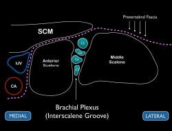 Figure 3 Schematic representation of the interscalene brachial plexus. Note the prevertebral fascia located above the middle and anterior scalene muscles.