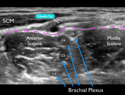 Figure 4 Ultrasound image of a failed block. Note that the needle tip is above the prevertebral fascia (pink dotted line). A small amount of anechoic anesthetic can be noted deposited above this important sonographic landmark.