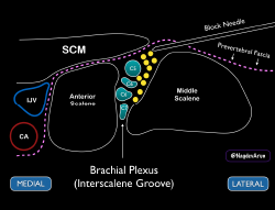 Figure 5 Schematic of how the needle tip should be placed just under the prevertebral fascia (and away from the roots of the brachial plexus).