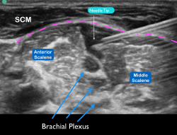 Figure 6 Ultrasound image of the needle tip under the prevertebral fascia (pink dotted line) with anechoic anesthetic deposited near the interscalene brachial plexus.