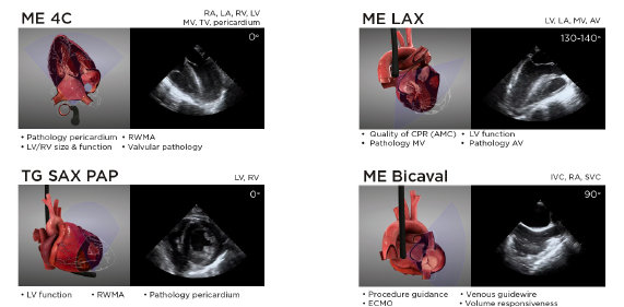 Figure 6: Summary of the views and main clinical applications of the four core resuscitative TEE views. Additional views can be used on a case-by-case basis to answer questions and guide management in specific clinical scenarios. Some of these views include mid-esophageal 2C (ME 2C), mid-esophageal aortic valve and ascending aorta short and long axis (ME AV SAX, ME ascending aorta SAX/LAX), right ventricular inflow-outflow (ME RV I-O), descending thoracic aorta (DTA SAX and LAX), and deep transgastric 5 chamber (Deep TG 5C). A full protocol including additional resuscitative TEE views can be found at www.resuscitativetee.com/protocols.