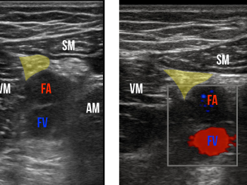 Figure 3: Sonographic view of the adductor canal. The saphenous nerve is highlighted.