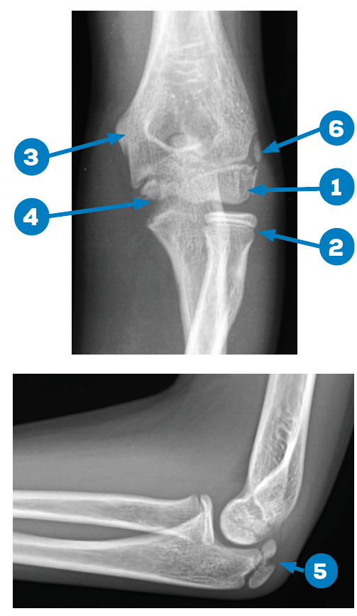 Figures 1A and 1B: Normal X-rays, 13-year-old male. 1) capitellum; 2) radial head; 3) internal (medial) epicondyle; 4) trochlea; 5) olecranon; and 6) external (lateral) epicondyle.