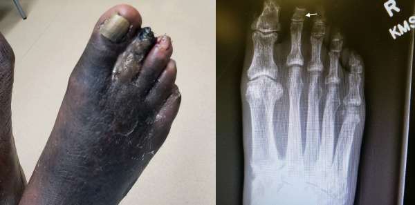 Figure 1(LEFT): Gross observation of the right foot demonstrates gangrene with purulence, edema, and absent distal phalanx. Figure 2(ABOVE): X-ray of right foot revealing osteomyelitis of the second middle phalanx (arrow) and absent second distal phalanx in AP view.