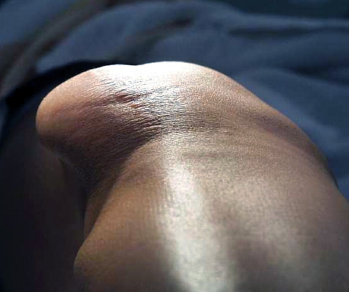 Figure 3: Visible lateral deviation of the patella.