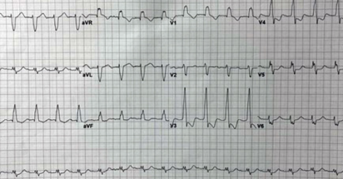 Figure 2: The patient's initial ECG 10 minutes after presentation.