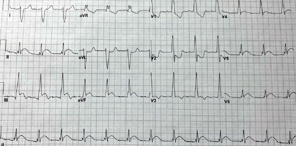 Figure 3: The patient's ECG prior to cardiac catheterization, one hour after the initial ECG.