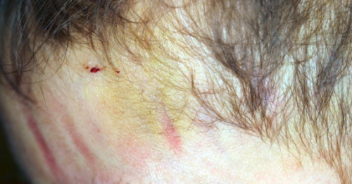 Figure 1: A 2-year-old male with bruising to his face.
