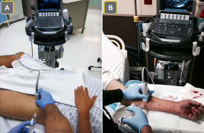 Figure 1A: The ultrasound screen is placed contralateral to the injured extremity when performing a femoral nerve block. This allows the clinician to view the ultrasound screen and the site of needle entry in the same line of sight. Figure 1B: For a forearm nerve block for a palmar laceration, the ultrasound screen is placed on the ipsilateral side of the injury to allow for a clear line of sight.
