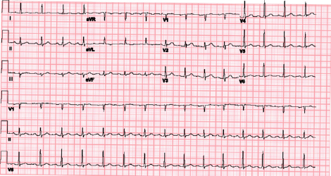 Figure 1: The patient's initial ECG demonstrated isolated T wave inversion in aVL.