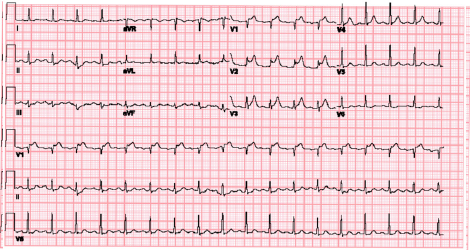 Figure 2: The patient's repeat ECG demonstrated ST elevation in V1–V3 with reciprocal ST depression in II and aVF.