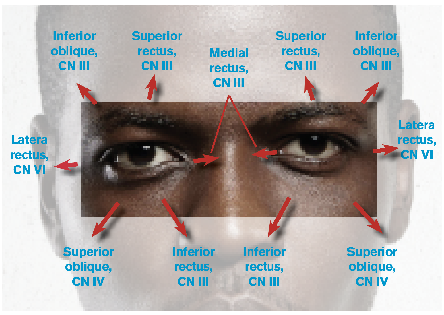 Figure 1: Eye Movements and the Related Cranial Nerves (CNs) and Extraocular Muscles