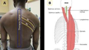 Erector spinae plane block step 1
