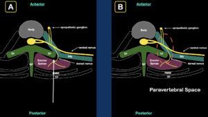 Erector spinae plane block step 2